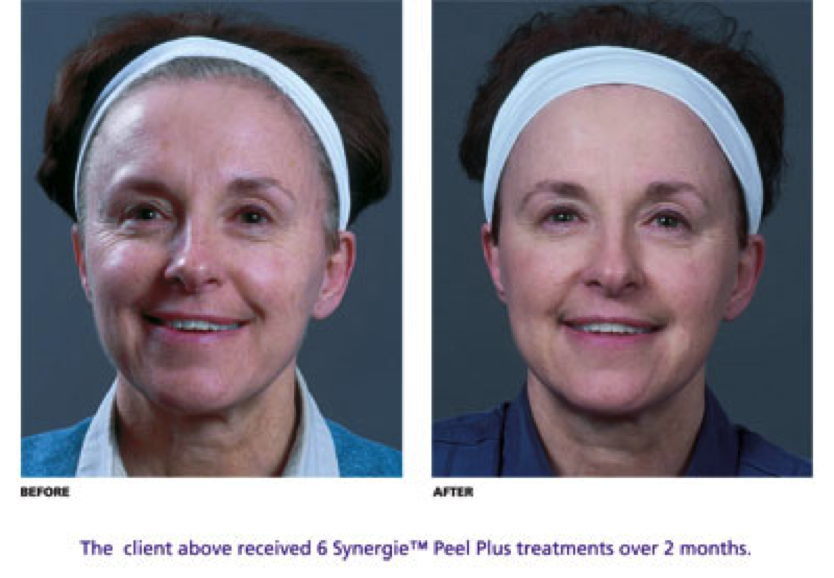Anti Aging Without Going Under The Knife How To Look Younger In