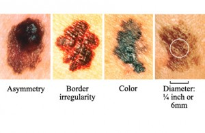 Signs of Melanoma