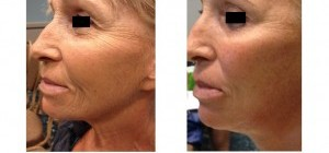 Our newest Facial gives you an Instant face lift without surgery!