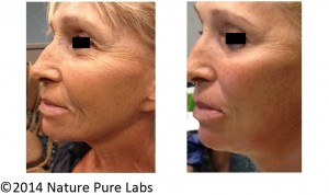 Post Menopausal Micro-Needling Facial